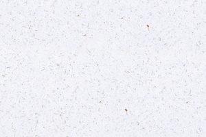 Starligh kollekcIó - Brillant White